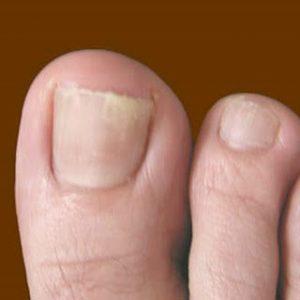 can nail fungus kill you